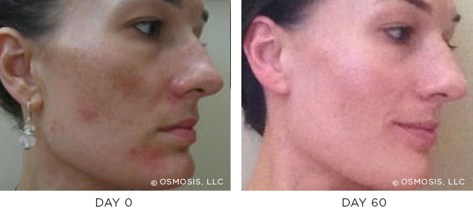 This journey to clear, balanced skin included daily use of Rescue Epidermal Repair Serum and Immune