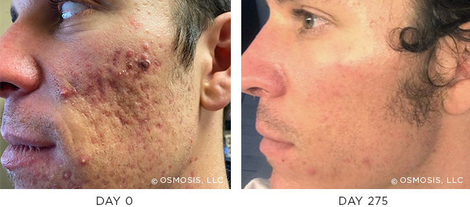 These results were achieved with an Osmo
