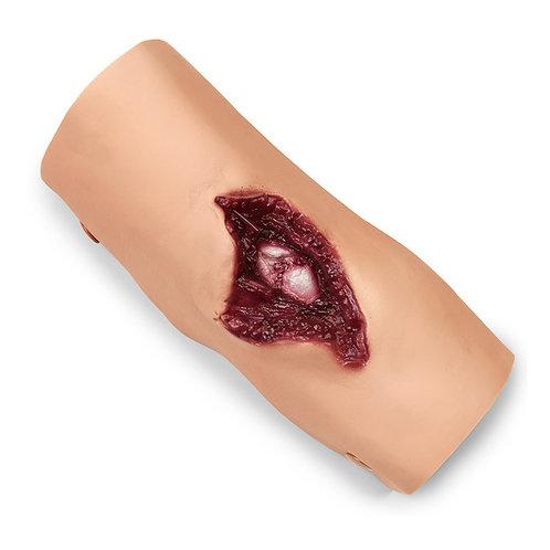 Compound Fracture - Humerus