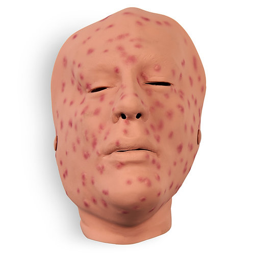 Wound - Smallpox, 2nd Day, Face