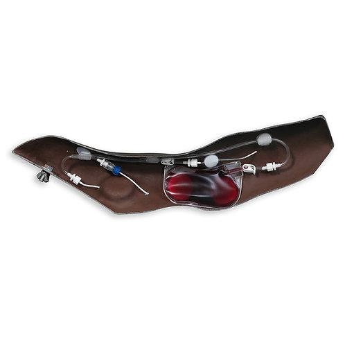Chester Chest™ Standard Arm - Dark
