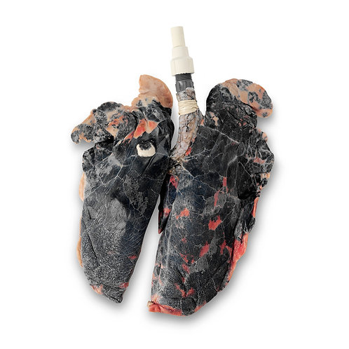 BioQuest® Inflatable Lungs - Simulated Smoker's Lungs, Preserved