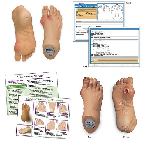 Nasco Common Foot Problems Kit