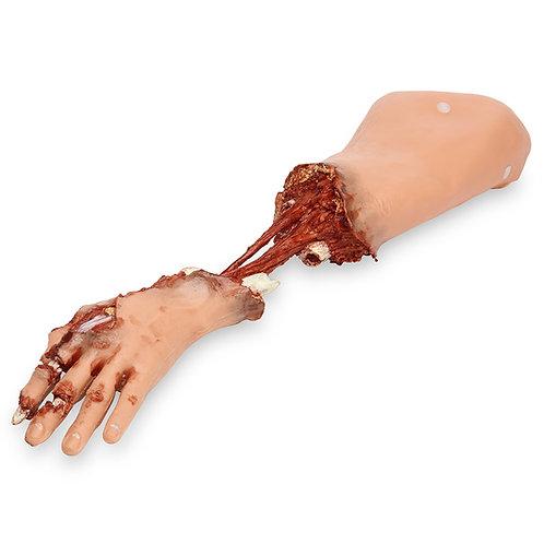 Simulaids® Xtreme Trauma Bleeding Arm for Basic SMART STAT