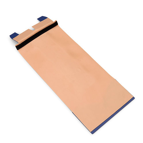 Replacement Skin Flap
