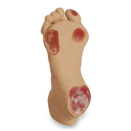 Life/form® Elderly Pressure Ulcer Foot - Light