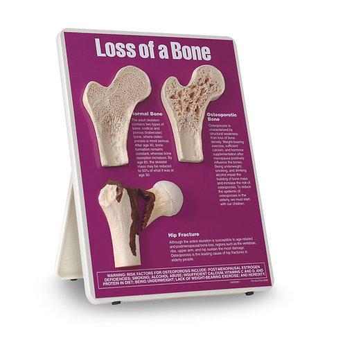 Loss of a Bone