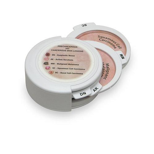 5-Piece Hinged Skin Cancer Disk Set