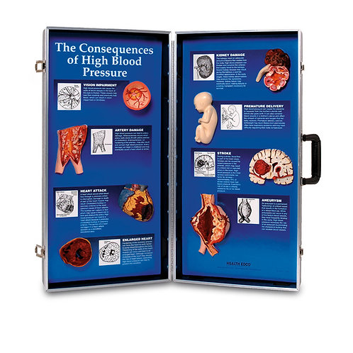 The Consequences of High Blood Pressure 3-D Display - 28 in. x 27 in.