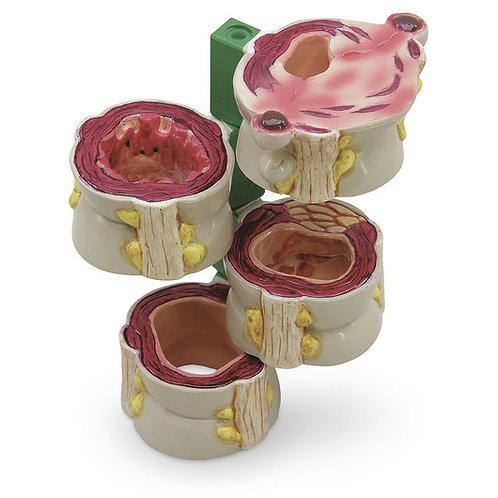 4-Piece Colon Model with Pathologies