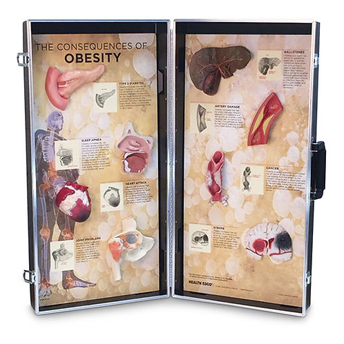 Consequences of Obesity Display Model - 28 in. x 27 in.