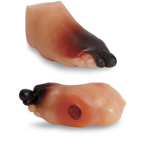 Severe Diabetic Foot Model
