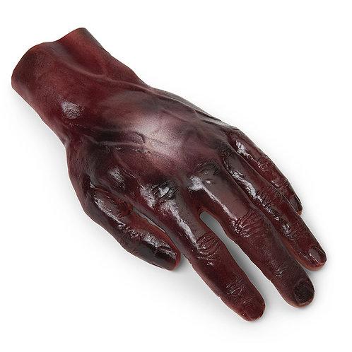 Burn - Hand - 2nd/3rd Degree - Dark