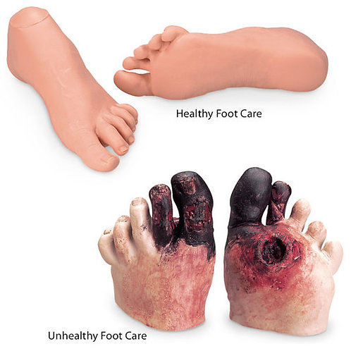 Nasco Healthy and Unhealthy Foot Care Set