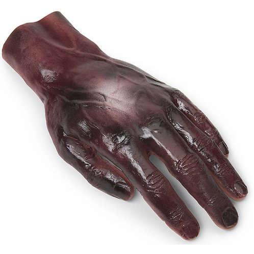 Burn - Hand - 2nd/3rd Degree
