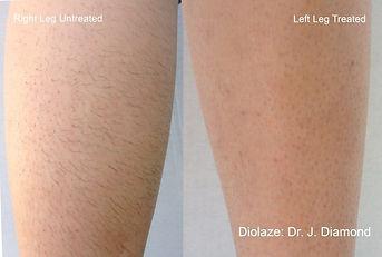 laser-hair-removal-4.jpg