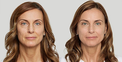 katherine-before-after.jpg
