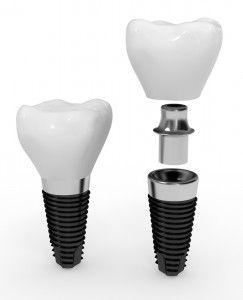 牙齿种植 部件