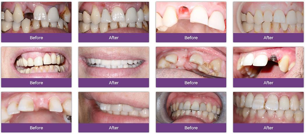 Dentexcel种植牙治疗效果分享