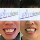 Dentexcel英国隐适美矫正效果对比图