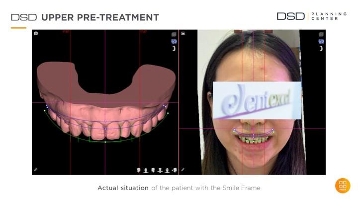 笑容设计前牙齿评估