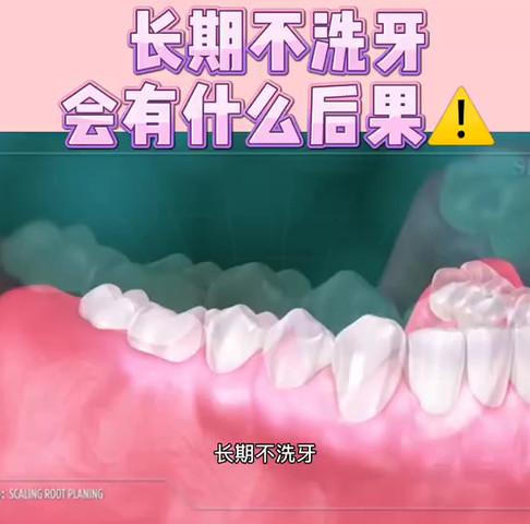 口腔健康  长期不洗牙会有什么后果⚠️