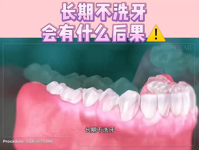 口腔健康| 长期不洗牙会有什么后果⚠️