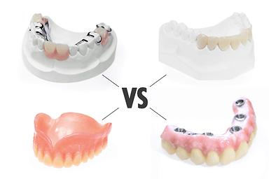 artlab-all-on-four-dental-implant-guide_