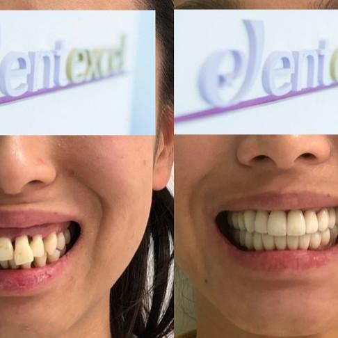 英国All-on-4全口重建:伦敦金融城高级白领牙齿种植经历