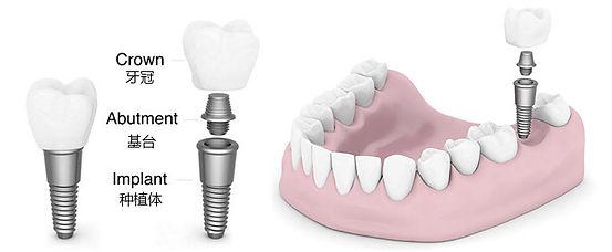 Dental implant 牙齿种植 伦敦