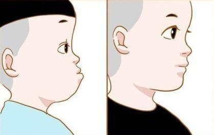 隐适美矫正地包天| 听说整牙可以'换头'?