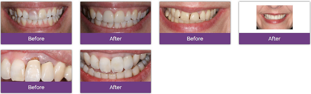 Dentexcel烤瓷牙牙冠治疗效果分享