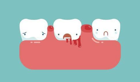 牙齿整形| 在英国牙齿稀疏牙缝大咋整?