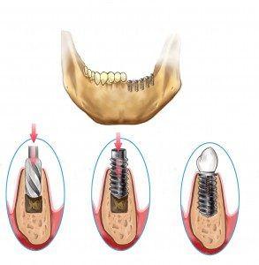 牙齿种植 过程