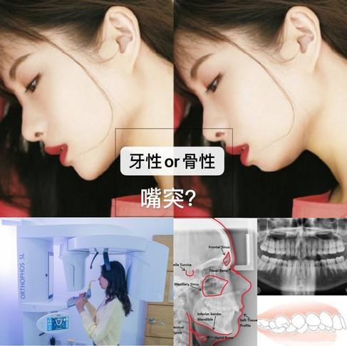 如何在10秒钟内判断自己是牙性还是骨性嘴突?
