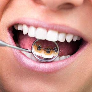 Lingual Braces舌内侧牙套