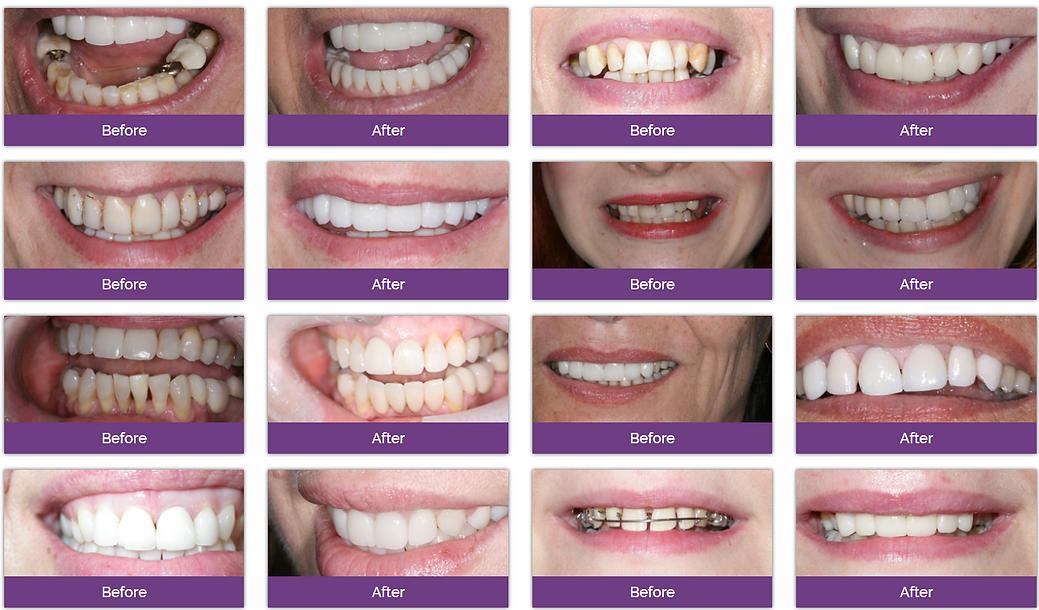 Dentexcel牙贴片治疗效果分享