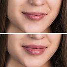 Lippen Hyaluron Volumenaufbau.jpg