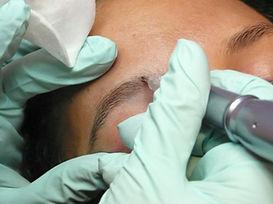 Permanent Make Up Entfernung Korrektur