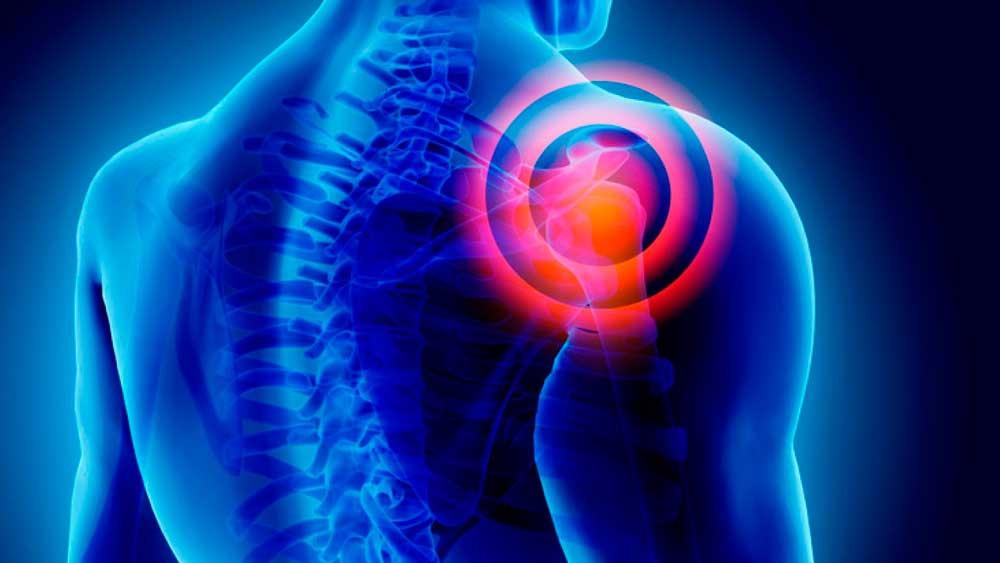 Luxação do ombro tem recuperação ou prevenção?