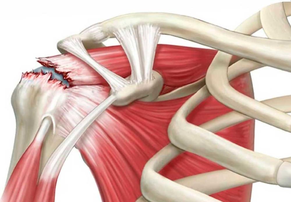 Lesão do manguito rotador: causas, sintomas e tratamento