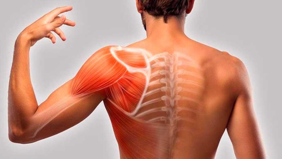 Síndrome do impacto: entenda o que é a compressão do tendão do ombro
