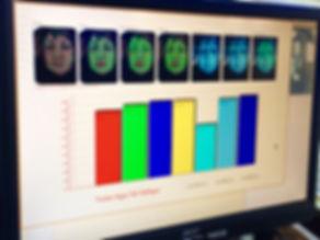 MetrOasis Skin Analysis Report
