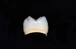 molar_single_side.jpg