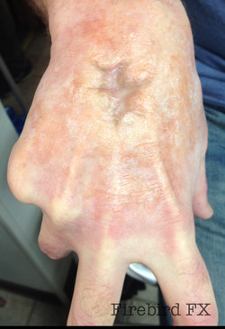 Scarred hand