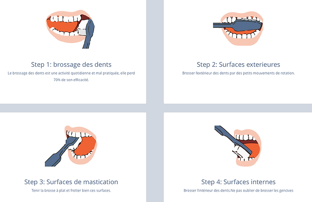 Bien connu Comment bien se brosser les dents? | French dentist London ZJ68