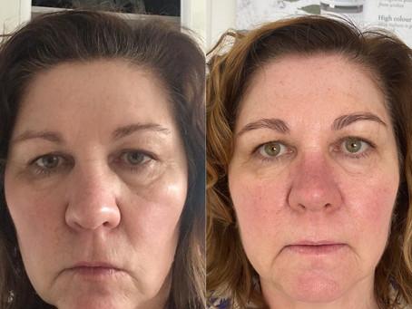 Real Results ! Look at this skin transformation