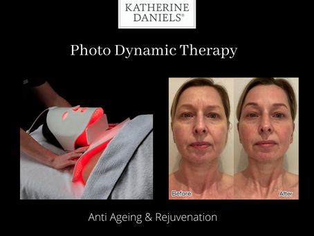 What is Photo Dynamic Therapy and how can it help your skin?