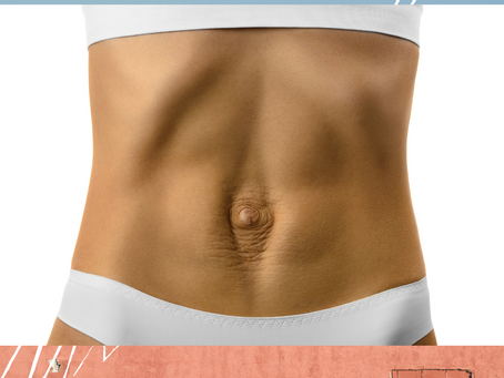 WHAT IS DIASTASIS RECTI (DR)?