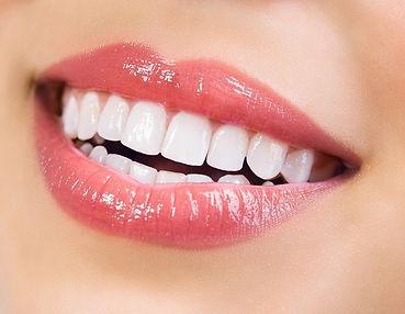 best teeth whitening Singapor